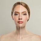 Laser frakcyjny – zapomnij o defektach skórnych!